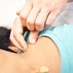 De body stress release practitioner voert een release in het nekgebied uit