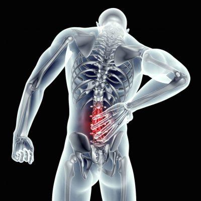anatomische afbeelding van lumbago met roodgekleurd pijngebied